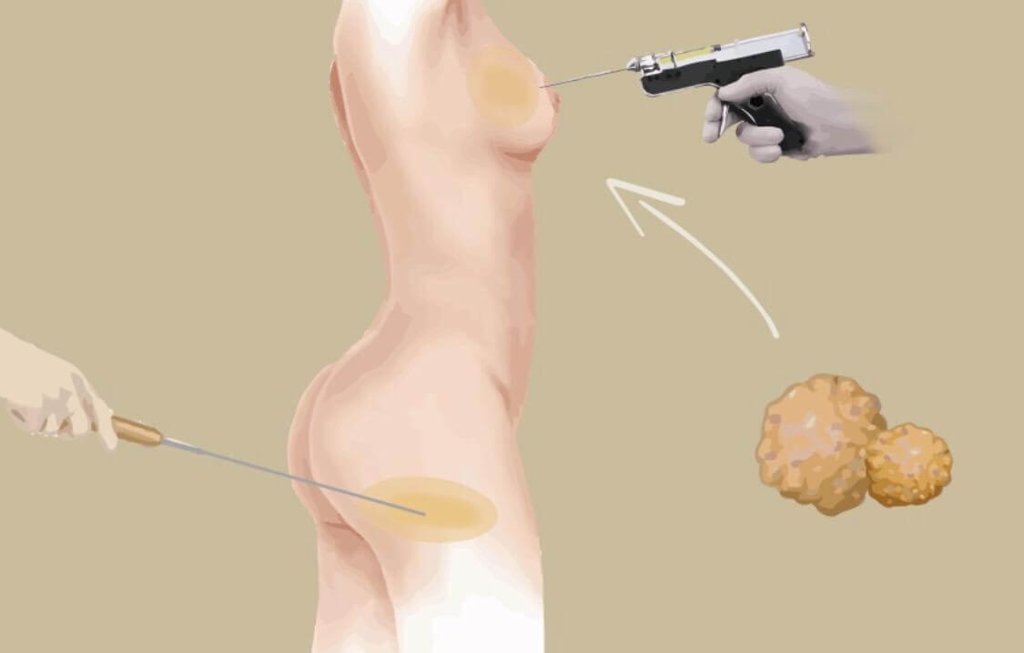 抽脂補胸的安全原則跟手術方法大解密